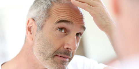 Balding in Men and Women