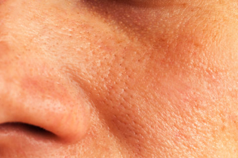 ORPW Skin Type: What You Need to Know