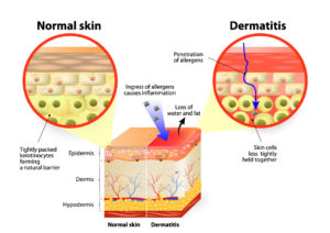 eczema-infogram-shutterstock_275935922-paid-for-rights-1182016