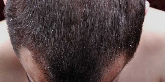 What to Do about Dandruff