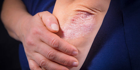 Psoriasis and Heart Disease: What You Need to Know