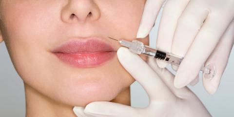 desired lip shape filler