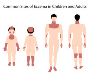 shutterstock_74586265-eczema-anatomy-rights-paid-1182016