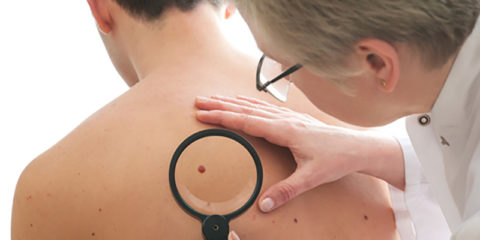 3 Different Types of Skin Cancer and Their Warning Signs