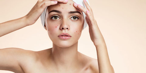 What to Do About a Pimple