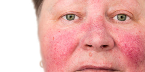 Finally--A Breakthrough in Rosacea Treatment