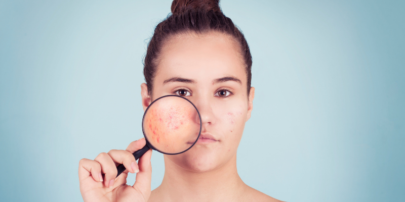 Girl with acne holding microscope